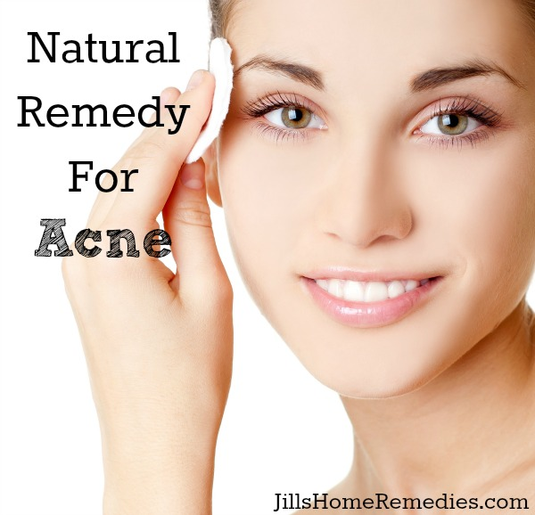 Natural Remedy For Acne