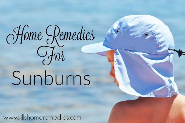 3 Home Remedies For Sunburns
