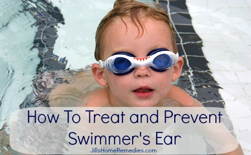 How To Treat And Prevent Swimmer's Ear