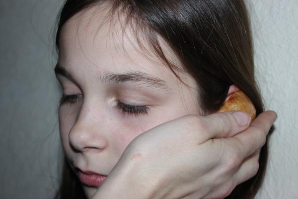 Ear Pain7